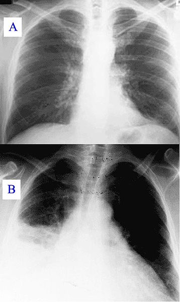 Pneumonia_x-ray